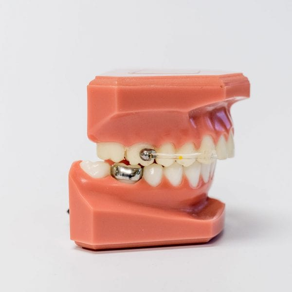 Carriere Distalizer Orthodontic Appliance
