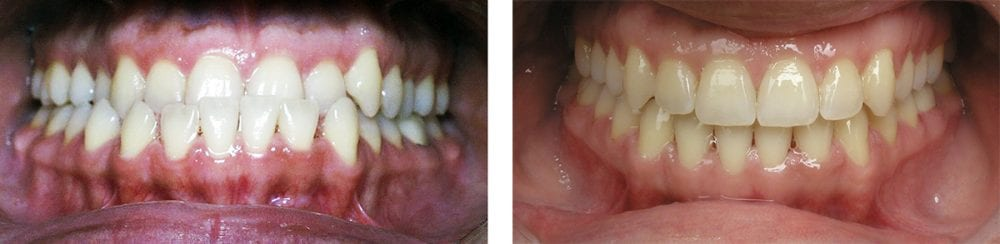 adult orthodontist before and after images temecula ca