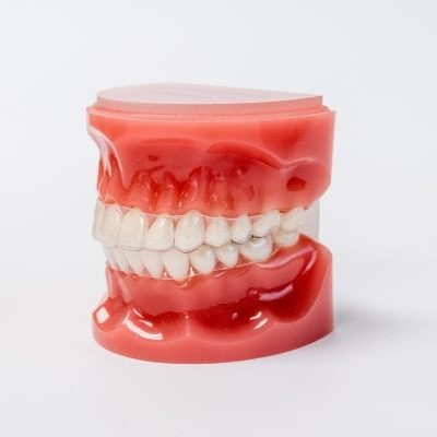 clear retainer - braces orthodontist