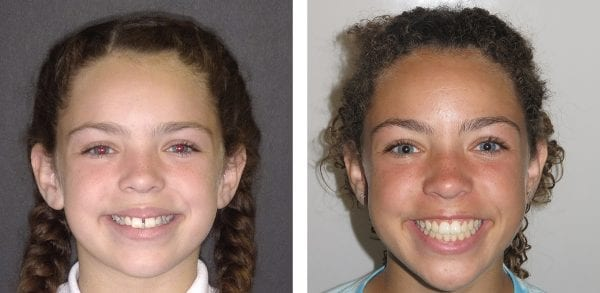 best child orthodontist for juniors