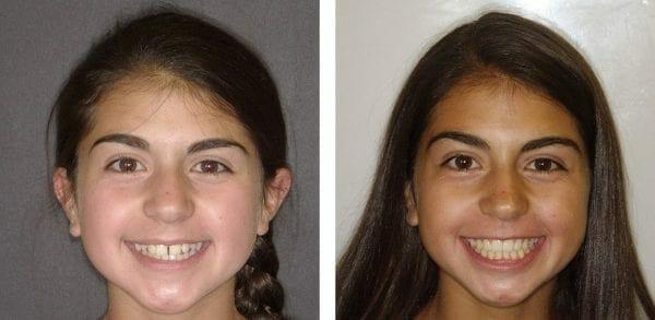 braces for children temecula ca