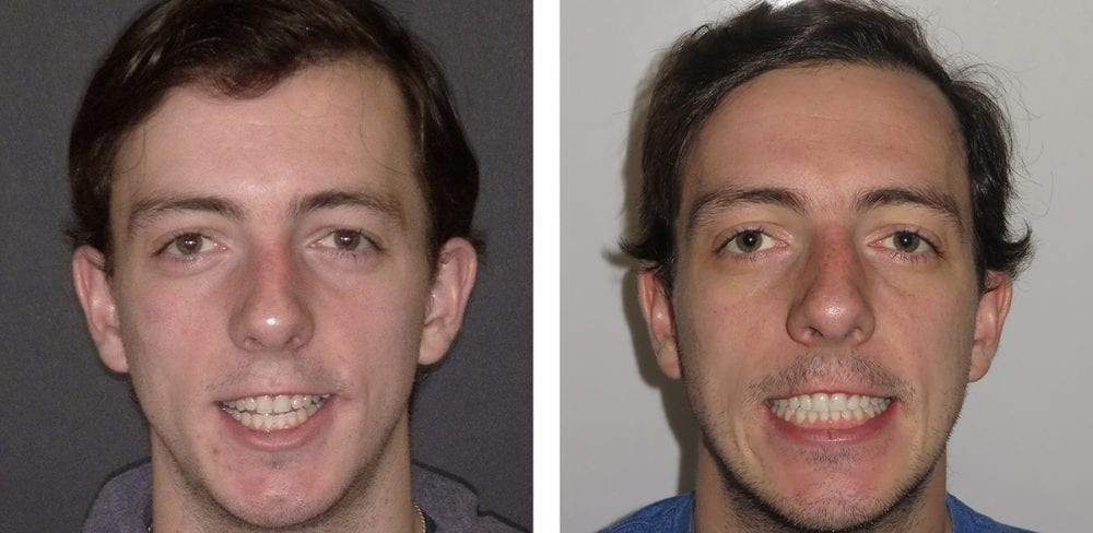 Before and After Photo of Corrective (Jaw) Orthognathic Surgery Patient with Burke & Redford Orthodontists