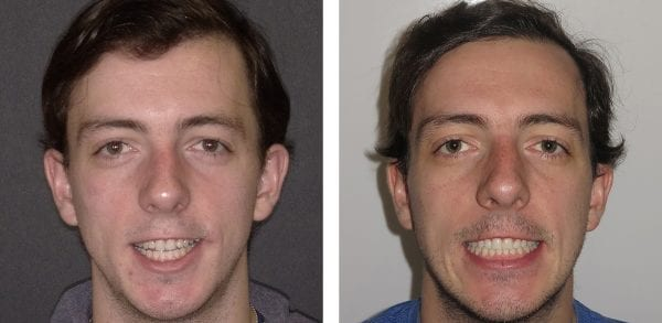 Before and After Photo of Corrective Orthognathic (Jaw) Surgery Patient with Burke & Redford Orthodontists
