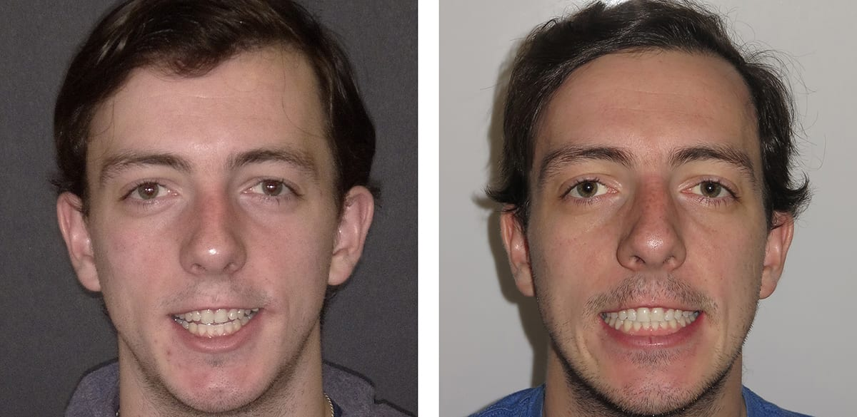 Orthognathic Surgery Jaw Surgery Orthodontists Work W Oms Surgeon