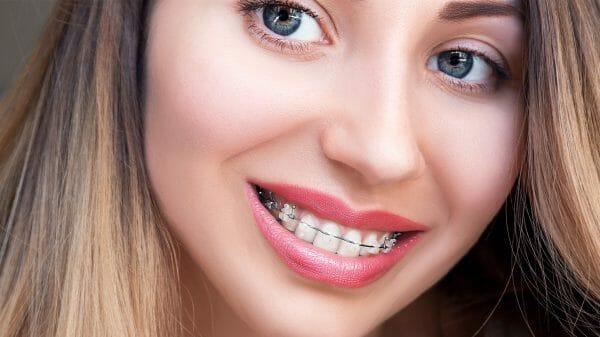 damon braces orthodontist temecula