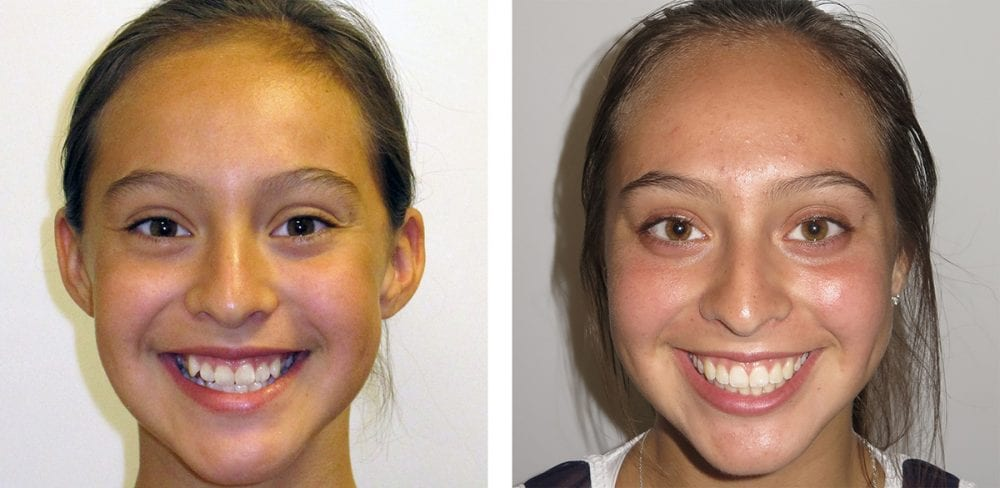 damon system braces orthodontist