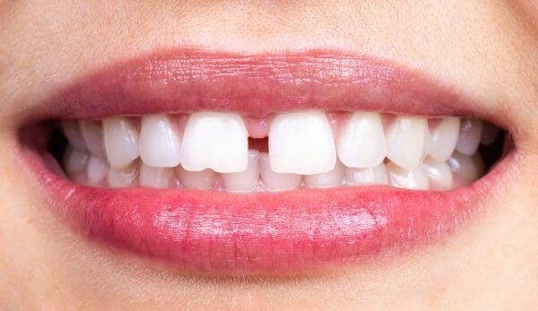 Gap Teeth - Diastema