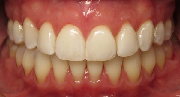 Invisalign for Adults Orthodontist Temecula After Picture