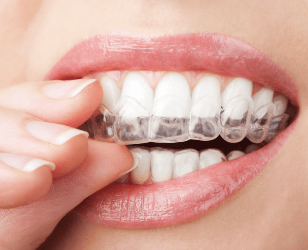 invisalign or braces
