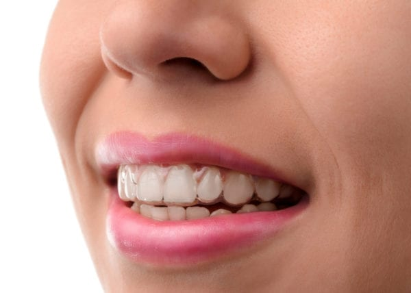 invisible braces invisalign orthodontic temecula