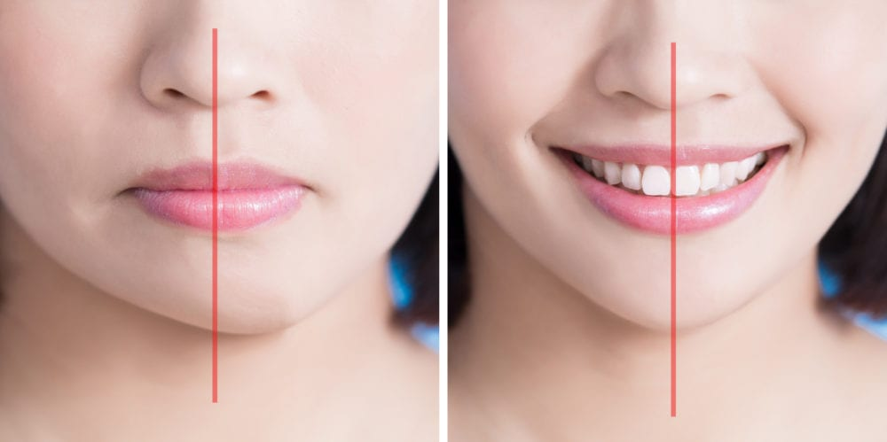 jaw misalignment treatment orthodontist