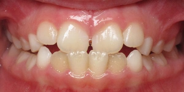 Metal Braces Ceramic Braces Vs Metal Vs Clear Braces Cost