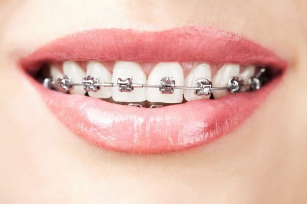 Metal Braces Self Ligating