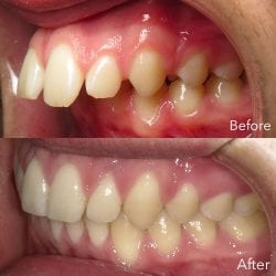overbite before and after pictures