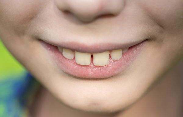 overbite jaw misalignment treatment