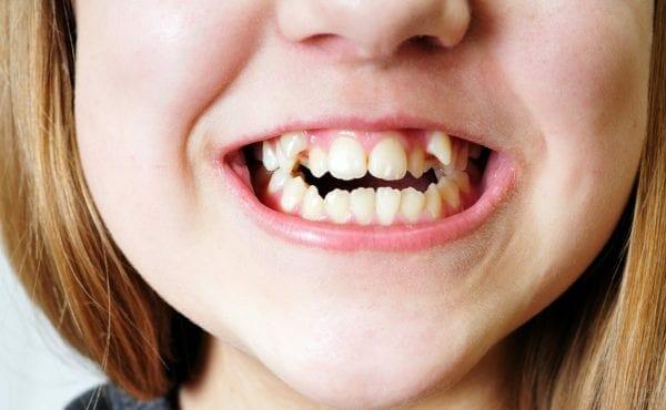 Pediatric Orthodontists Temecula