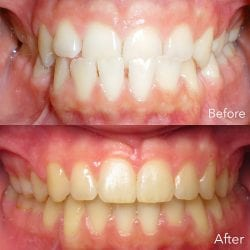 underbite-before-after
