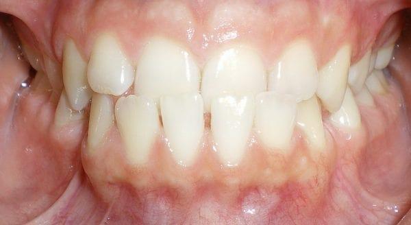 underbite correction orthodontist temecula ca